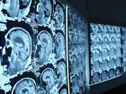 Тренінг для молодих рентгенологів